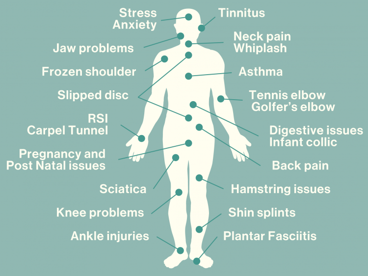 What Can Bowen Therapy Help?