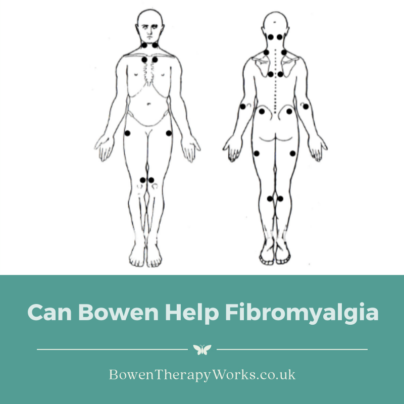 Can Bowen Help Fibromyalgia